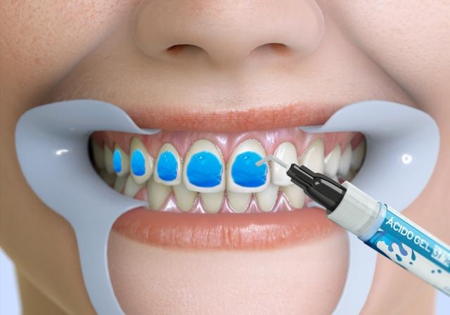 کاربرد اسید فسفریک در دندانپزشکی