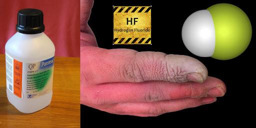 سوختگی هیدروفلوریک اسید